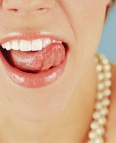 Лечение зубов, лечение кариеса