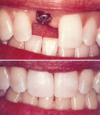 Имплантация зубов. Импланты Лико